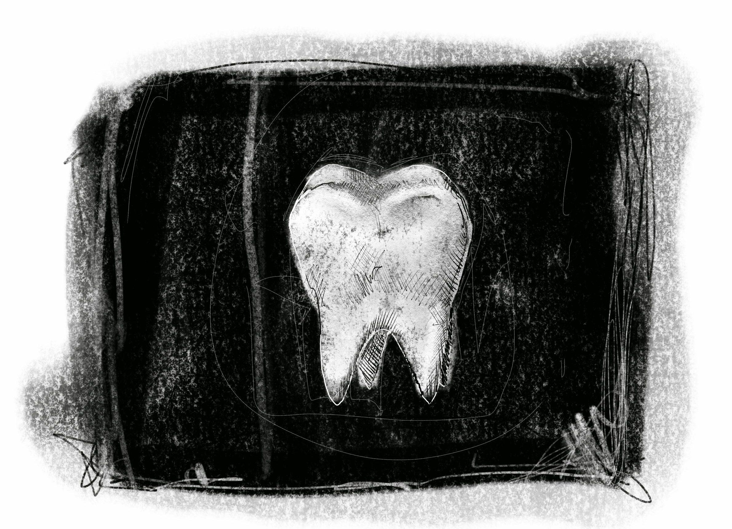 Zubobolja u zatvorskim uslovima